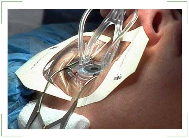 """Склеропластика: как проходит операция - """"здоровое око"""""""