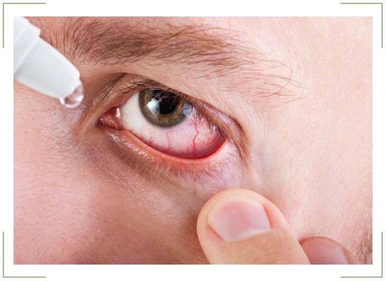 Боль при движении глазных яблок: все причины и методы лечения