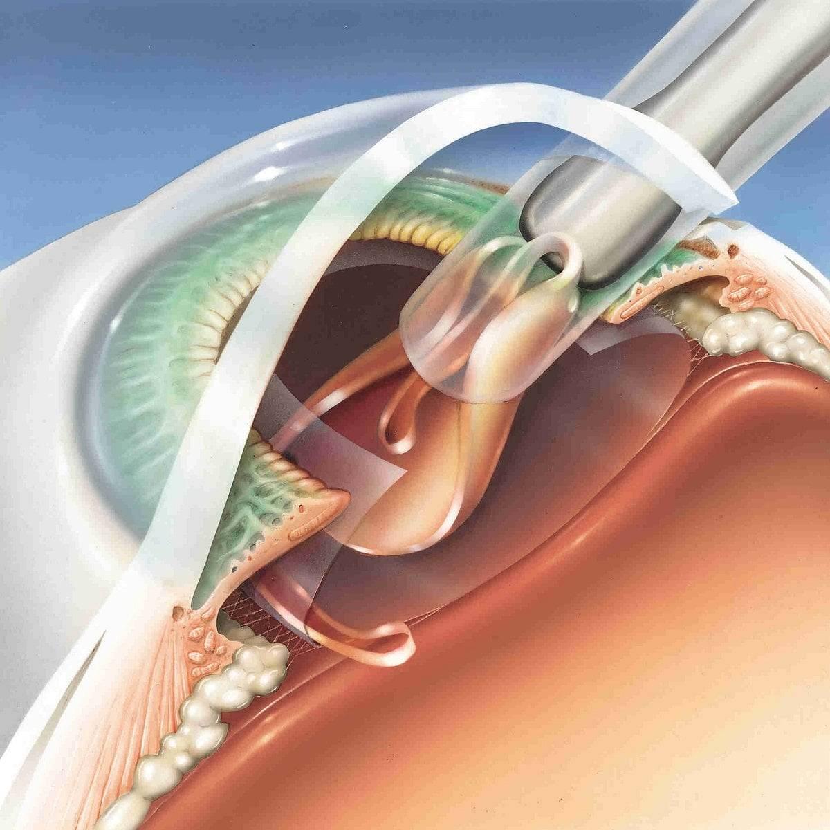 Лечение начальной стадии катаракты: что делать и как остановить развитие