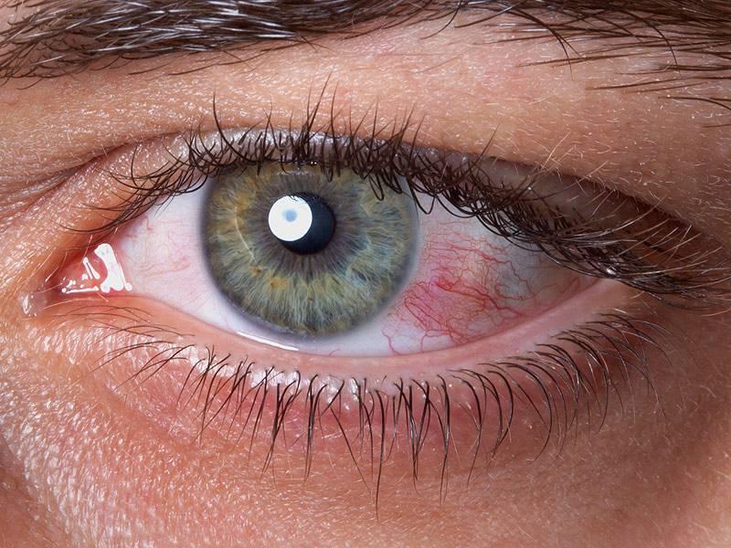Красные глаза от компьютера что делать последствия