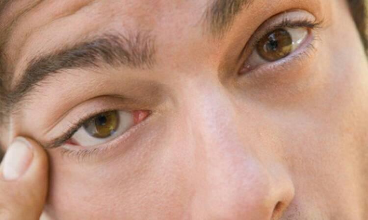 """Нервный тик глаза: причины и лечение - """"здоровое око"""""""