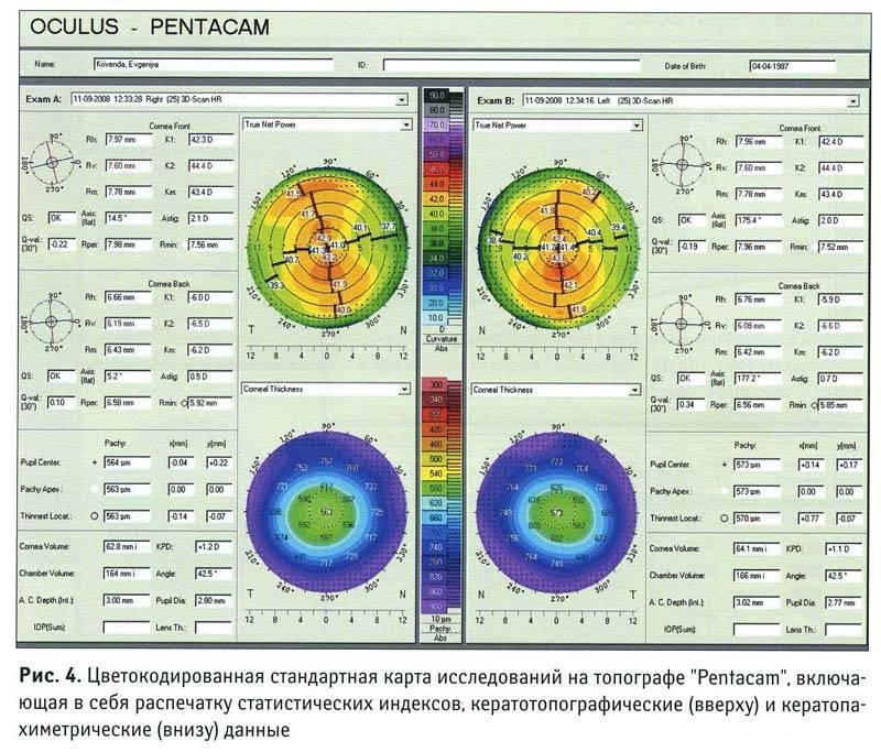 Как проводится кератометрия? норма и расшифровка показателей