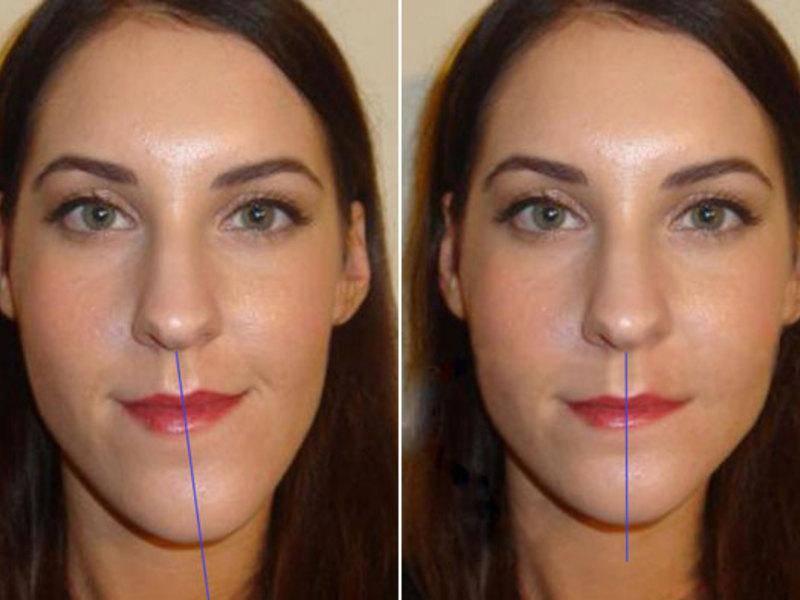 Асимметрия лица причиныи как исправиль: лечение у взрослых и детей +фото