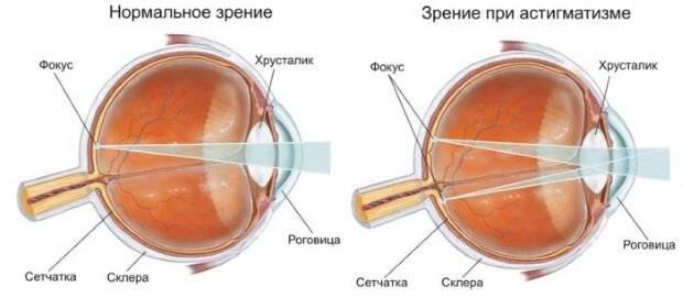 Нет резкости в глазах — нечеткое зрение