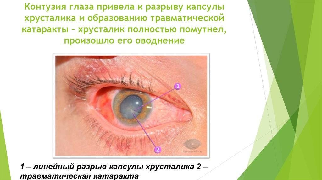 Как возникает контузия глазного яблока?