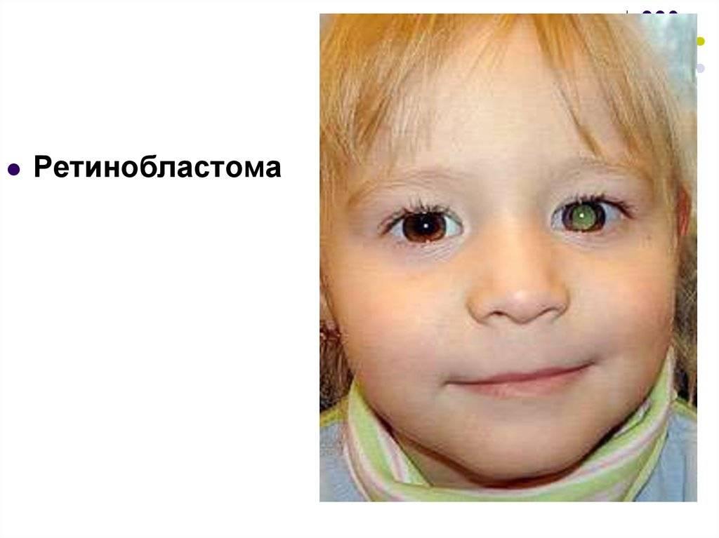 Все о ретинобластоме у детей – как не опоздать с лечением?