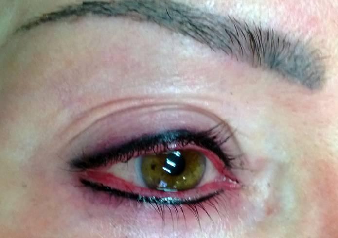 Отек после татуажа век и бровей: через сколько проходит и как снять побочный эффект с глаз