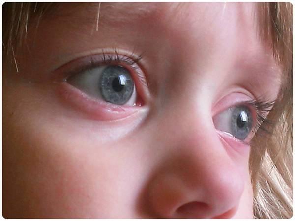 Конъюнктивит у ребенка в 2 года - как и чем лечить