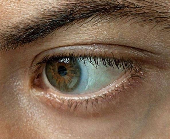 Почему мутно видно в линзах: плохо, но не всегда; если носить на глазах, при этом смотреть вдаль; при ношении новых, цветных; что делать, если стало хуже?