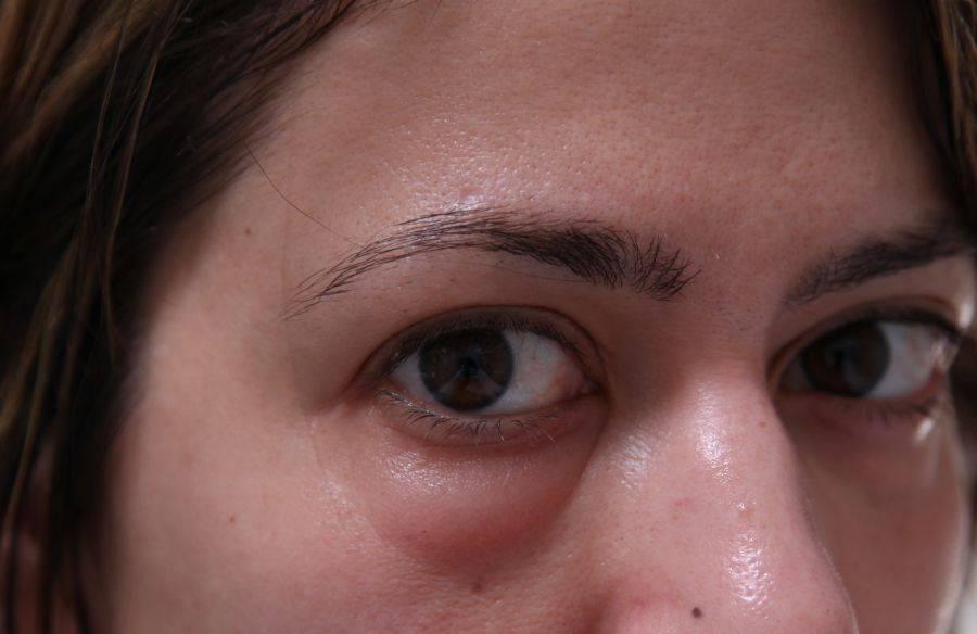Мешок под одним глазом - причины, лечение