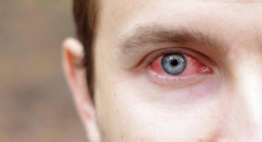 Почему могут болеть глаза от работы за компьютером?
