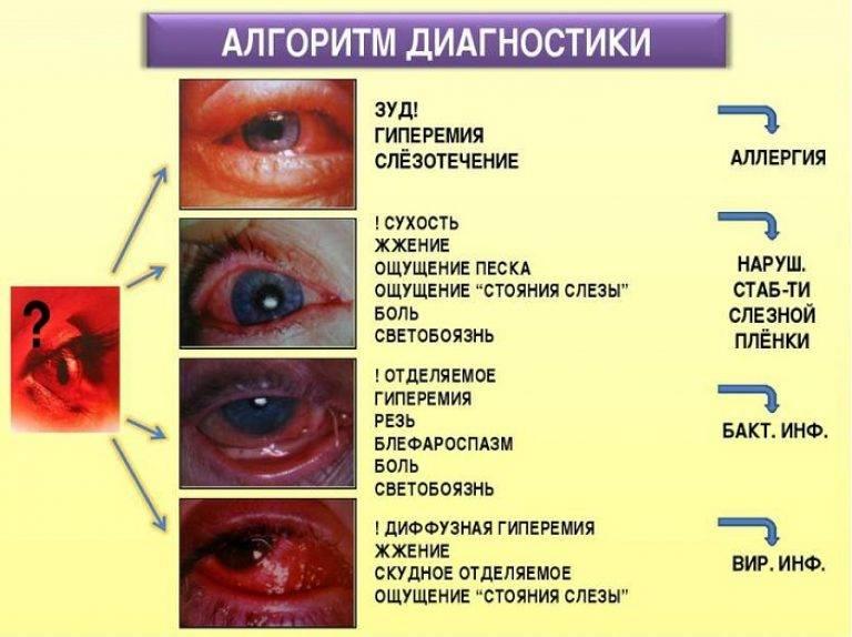 Какие причины и симптомы конъюнктивита у взрослых можно выделить? фото, виды, признаки и диагностика заболевания