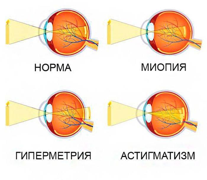 Миопический астигматизм: что это такое, как лечить сложную и простую формы заболевания,