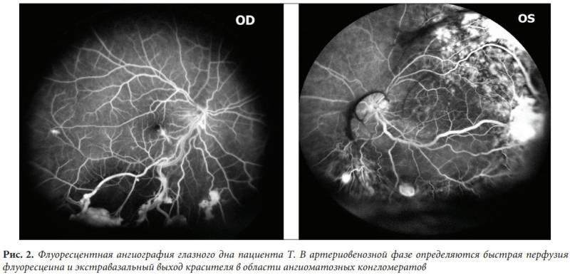 Флуоресцентная ангиография глазного дна: уникальный метод обследования