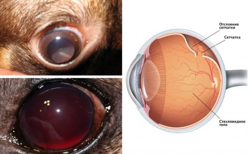 Виды отслойки сетчатки глаза, причины и методы лечения