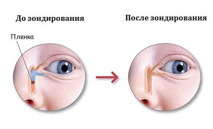 В каких случаях необходимо зондирование слезного канала у новорожденных. зондирование при непроходимости слезного канала у новорожденных - новая медицина