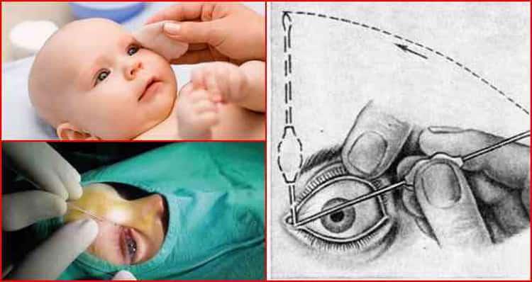 Массаж при дакриоцистите новорожденных: видео, как правильно делать, через сколько проходит патология