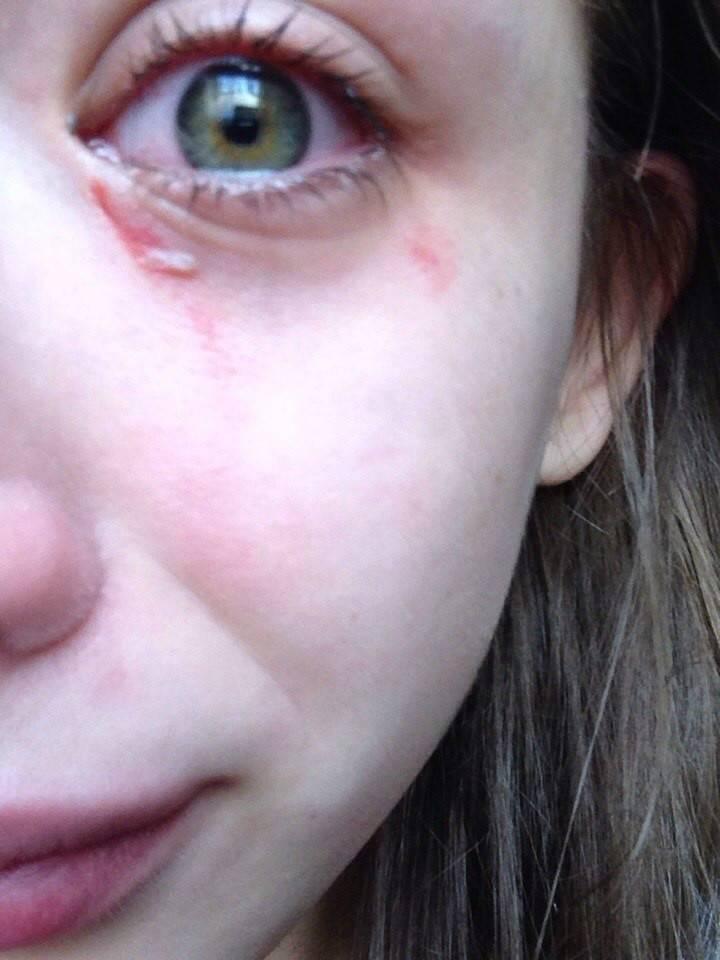 Царапина на роговице глаза: симптомы и лечение