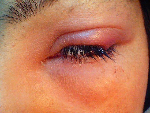 Аллергия вокруг глаз: причины, симптомы, лечение, меры профилактики