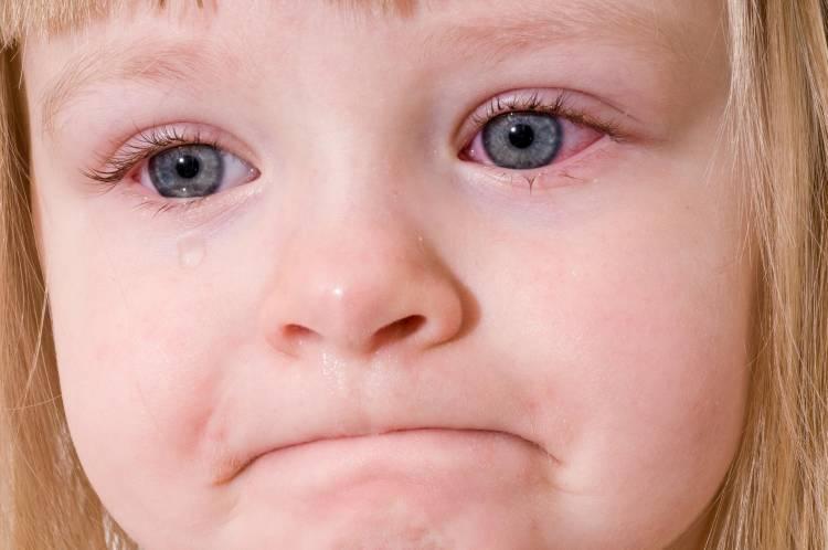 Малыш только расстроен или всё намного серьёзнее? почему у ребёнка в 2 года слезятся глаза
