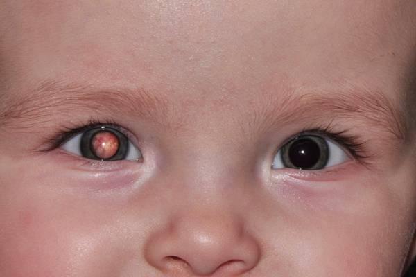 Причины врожденной катаракты у детей