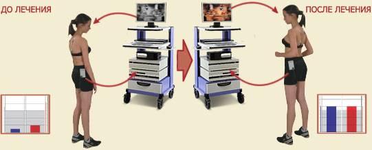 Что такое амблиокор в офтальмологии и как он лечит