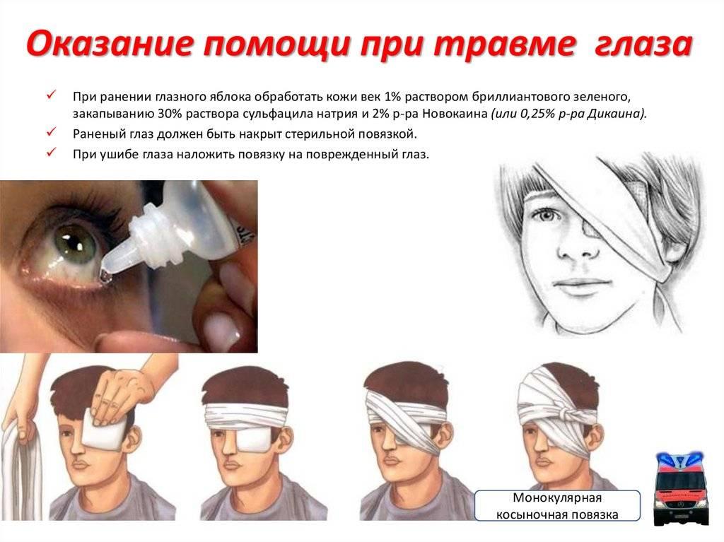 Травма глаза - первая помощь: оказания при повреждении глаз и век