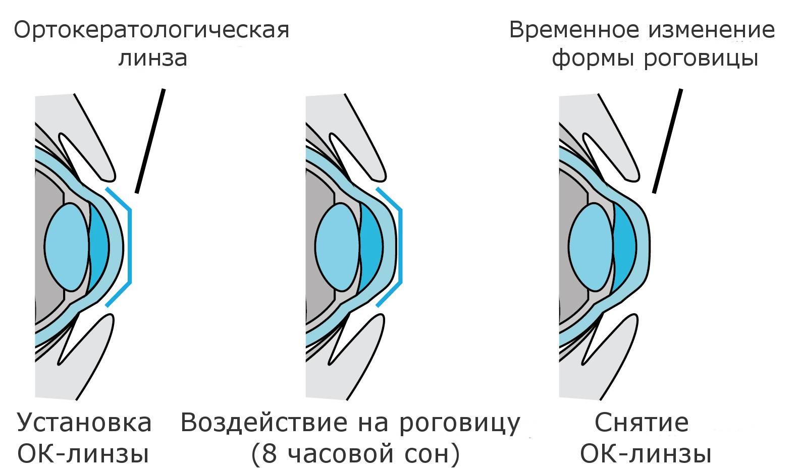 Ночные линзы для восстановления зрения: цена, отзывы людей, врачей, суть метода ок