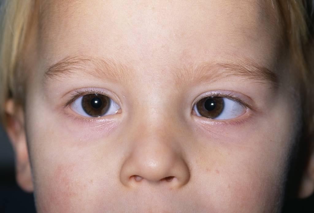 Косоглазие: причины, симптомы, диагностика и лечение