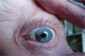 """Онкология глаза: симптомы и методы лечения - """"здоровое око"""""""