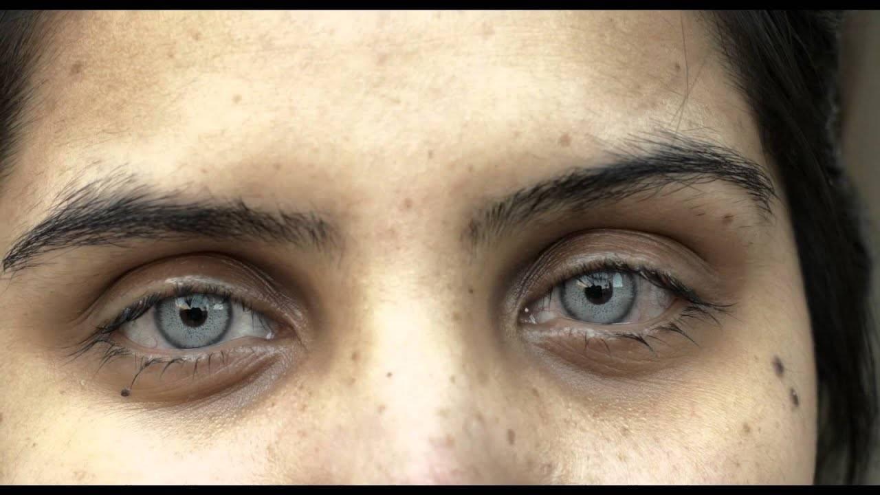 Изменение цвета глаз лазером: как делают и сколько стоит