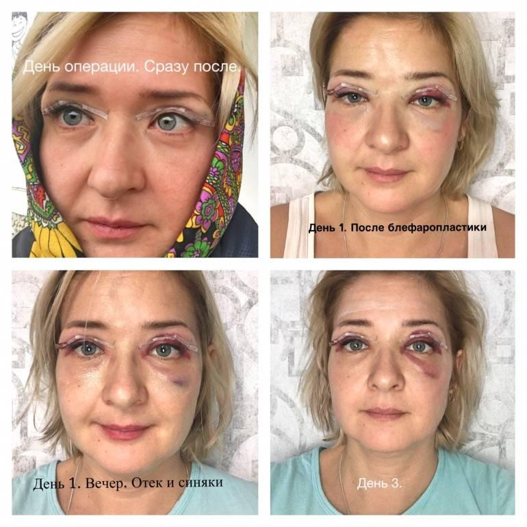 Реабилитация после блефаропластики — все о правилах ухода за глазами и возможных осложнениях