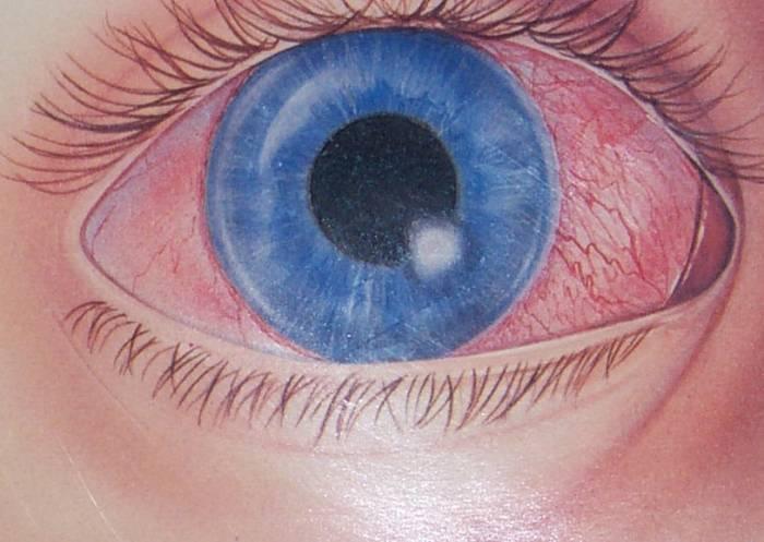 Симптомы и лечение нитчатого кератита глаза