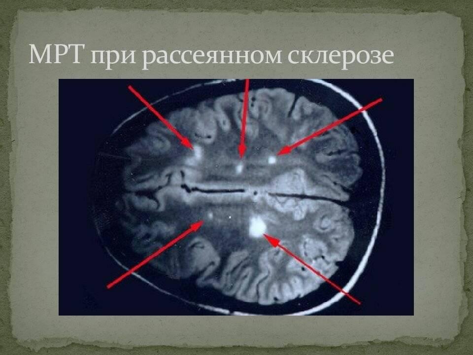 Как появляется и развивается рассеянный склероз: симптомы, лечение и профилактика
