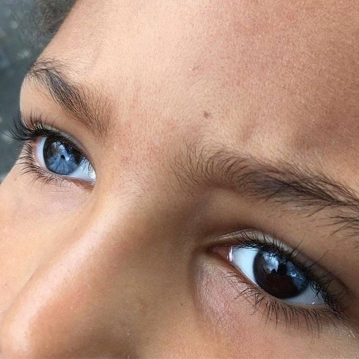 Гетерохромия глаз - что это такое, причины, виды, лечение