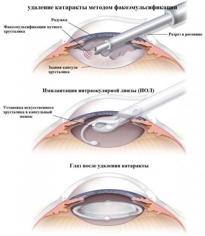 Как проводится операция катаракта? — офтальмология