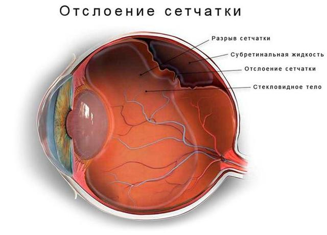 Один глаз видит хуже другого: причины, как исправить временное ухудшение зрения
