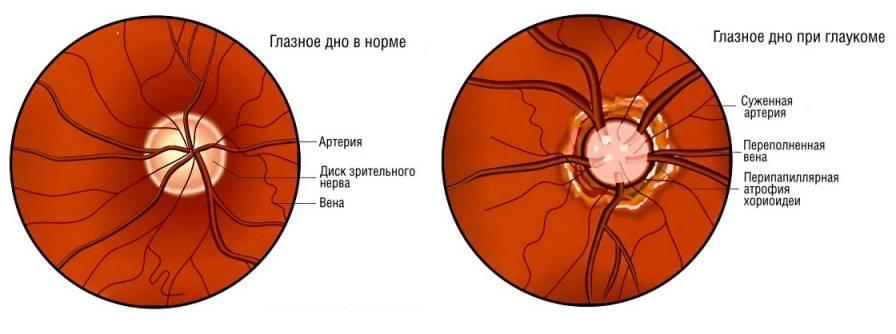 Почему возникает сужение сосудов глазного дна и как его лечить