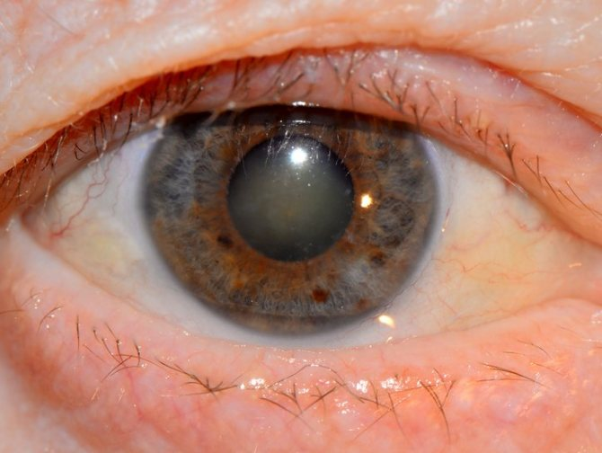"""Афакия глаза - отсутствие хрусталика в глазу: причины, лечение - """"здоровое око"""""""