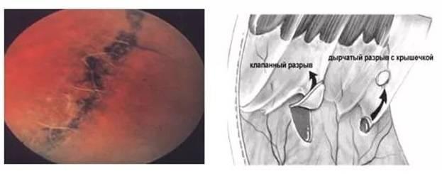 Травма роговицы - корнеосклеральный разрыв и зияние раны