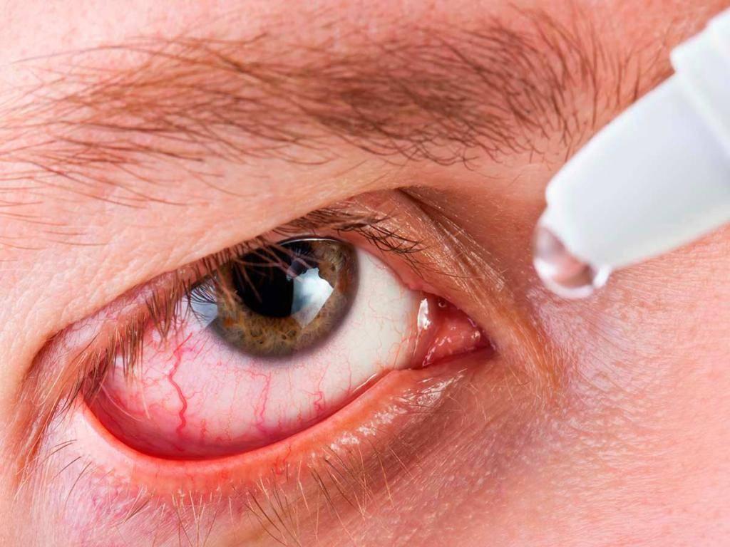 Боль внутри глаза, причины, способы лечения.