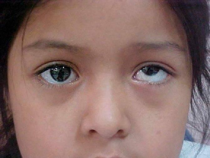 Амблиопия у детей: причины, симптомы, лечение, профилактика, фото, видео