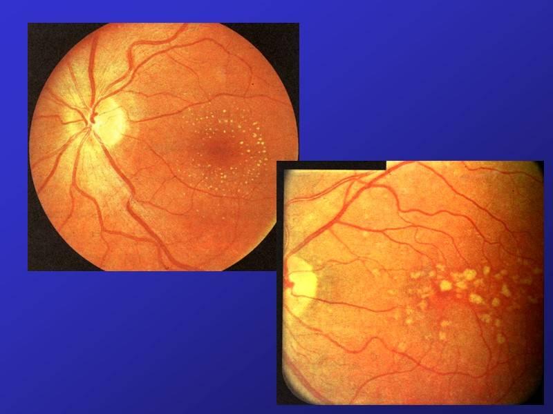 Дистрофия сетчатки глаза - что это, лечение, причины и симптомы