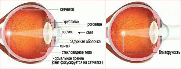 Что такое близорукость: это очки плюс или минус, способы лечения и профилактики