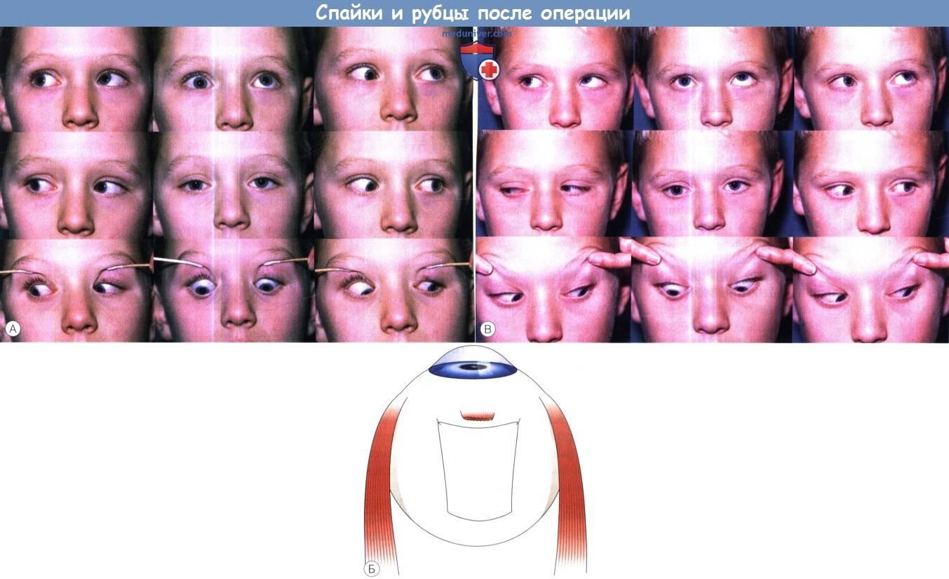 Операция на косоглазие: показания для хирургического вмешательства и результаты такого лечения — глаза эксперт