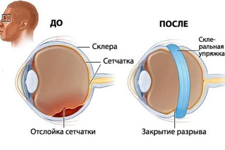 Признаки отслоения сетчатки глаза, симптомы, какие проявляются первыми на плавающей стадии, что это такое