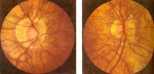 Глазное дно миопический конус. ложная и истинная миопическая стафилома сетчатки глаза. клиническая классификация миопии