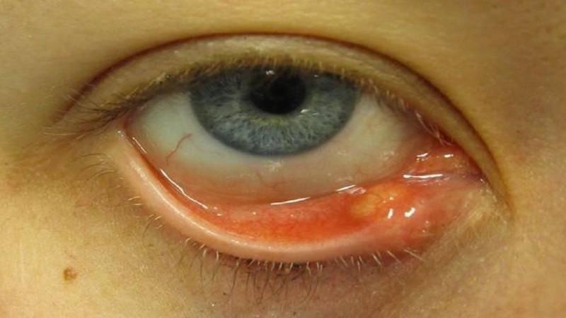 Как лечить ячмень на глазу дома: быстро и эффективно