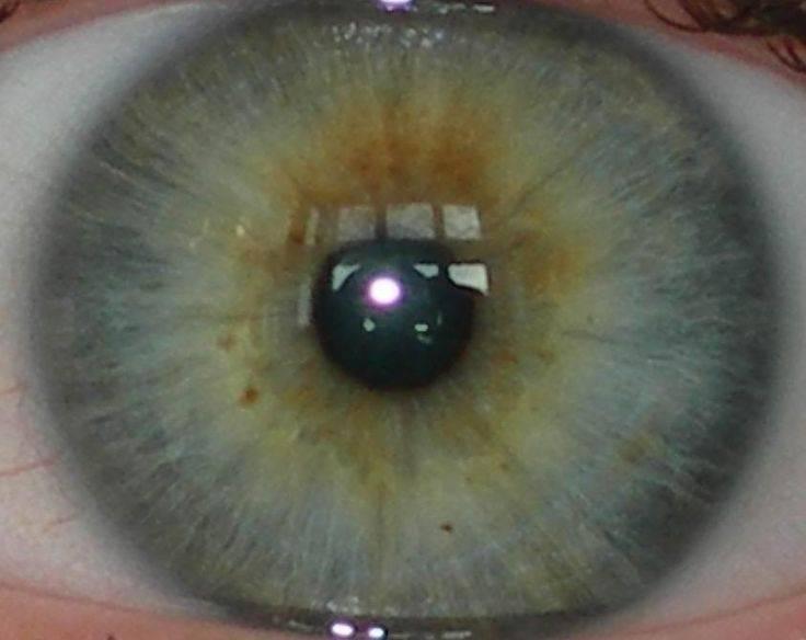 Эндокринная офтальмопатия: причины, симптомы и лечение