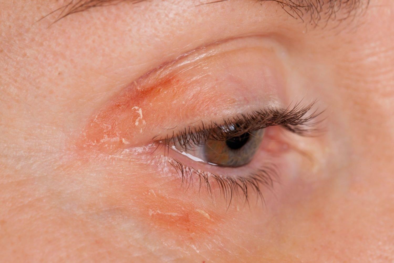 Почему щиплет глаза: возможные причины и методы лечения